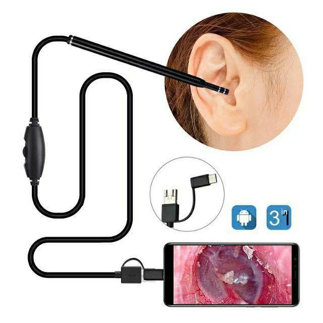 กล้องส่องหู 720p Hd ส่องดูช่องปาก คอและจมูกได้ ที่แคะหู มีกล้อง ต่อภาพวีดีโอ เข้ามือถือandroid,คอมพิวเตอร์ ภาพชัดใช้ง่าย ต่อได้ Usb, Micro Usb, Typec.